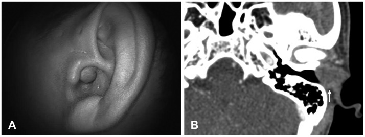 Clinical Characteristics of Epidermoid Cysts of the External
