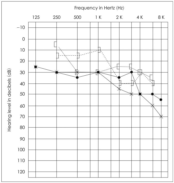 puretone audiogram shows hearing loss Hearing loss, particularly adult onset hearing losses, may get gradually worse (anybody experiencing rapid changes in their auditory thresholds should check with their gp as soon as possible) it is worth noting that some people with very similar audiograms can hear quite differently.